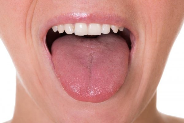 the-first-5-symptoms-of-tongue-cancer