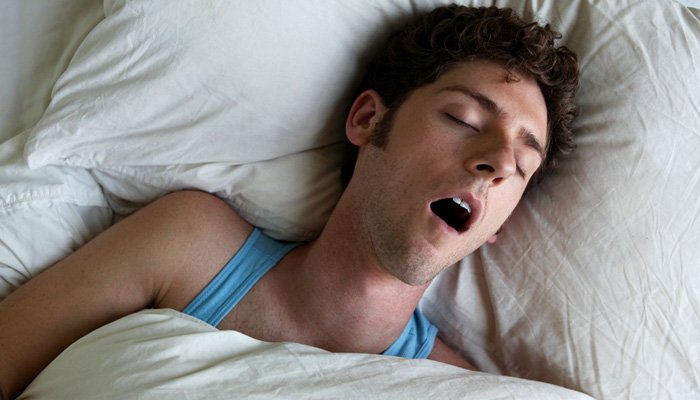 sleeping-with-open-mouth