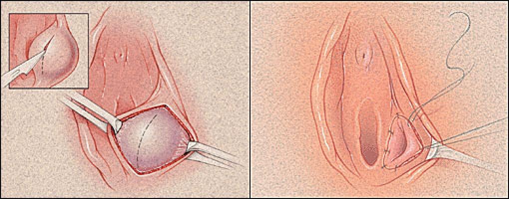 squirting od stimulacije klitorisa